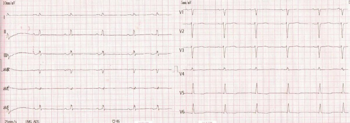 premature ventricular contractions pvcs induced by administration